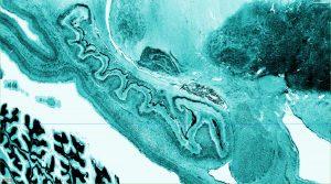 bigbrain_a3d_hippocampus_zoom