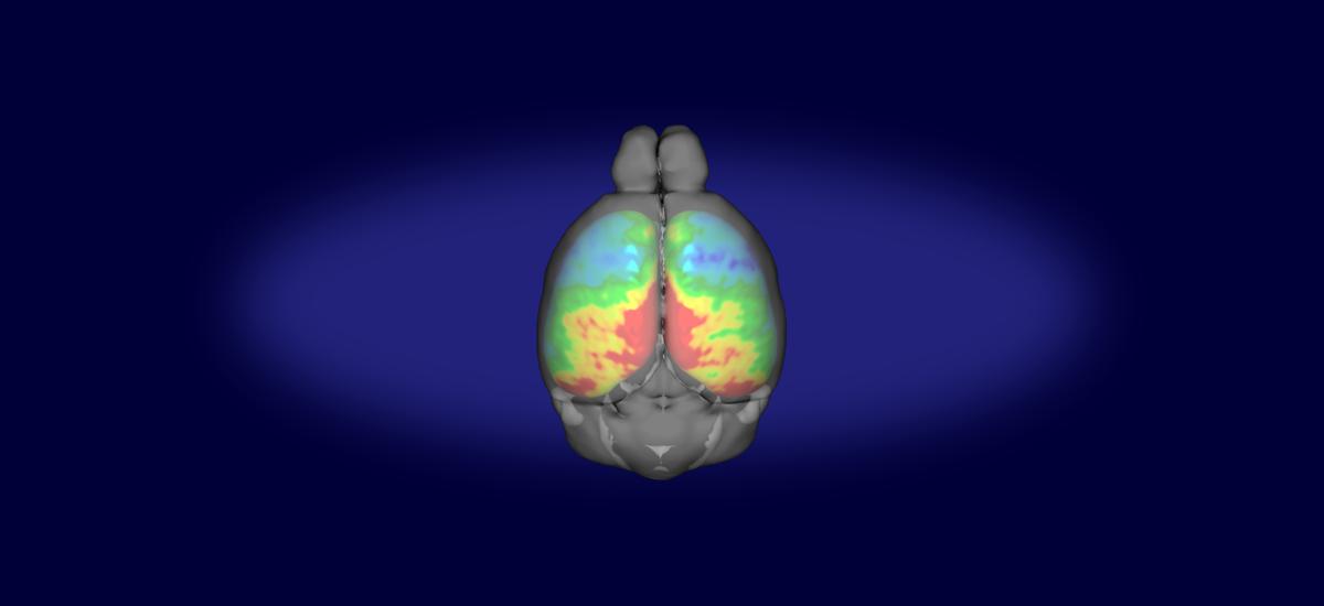 McGill Centre for Integrative Neuroscience – McGill Centre